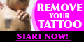 Wrecking BalmTattoo Removal