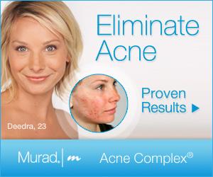 Murad Acne Complex Speical offer!